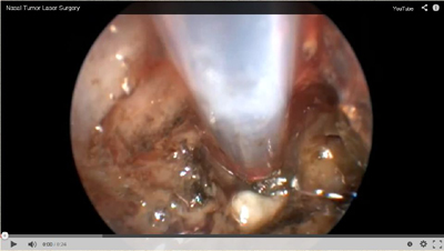 Icon - Nasal Tumor Laser Surgery Video