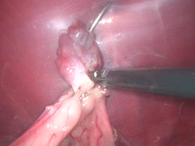 Laparoscopic Ovariectomy